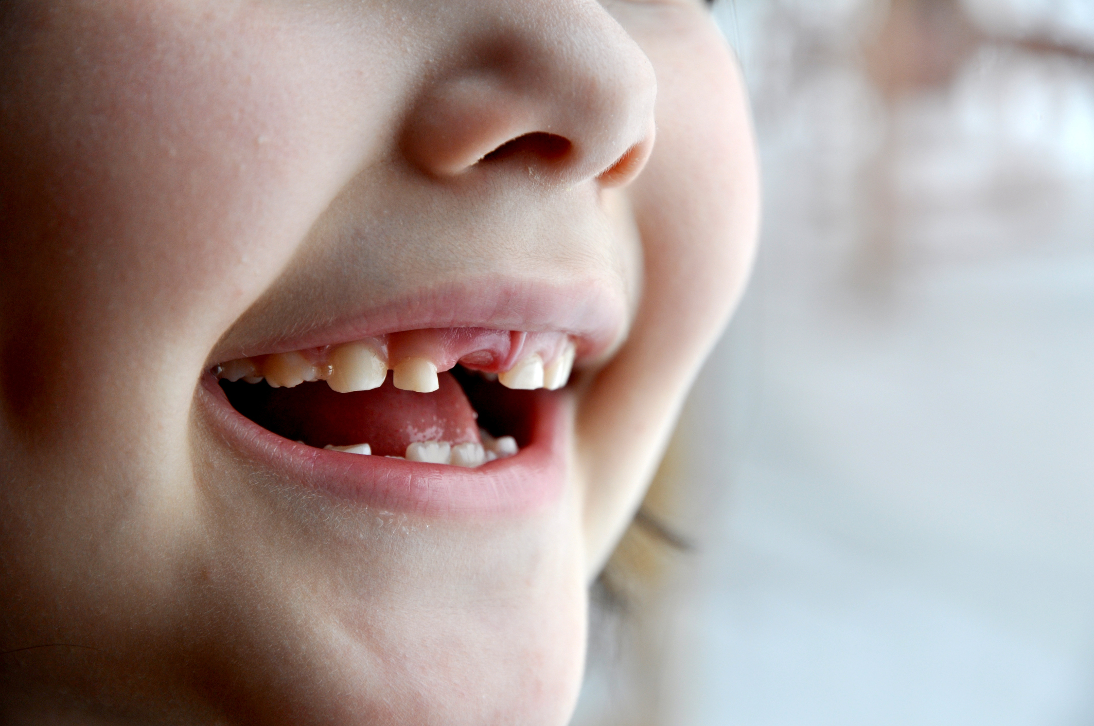 Child missing a tooth