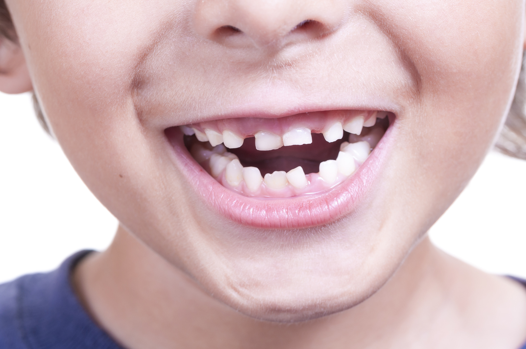 child missing primary teeth