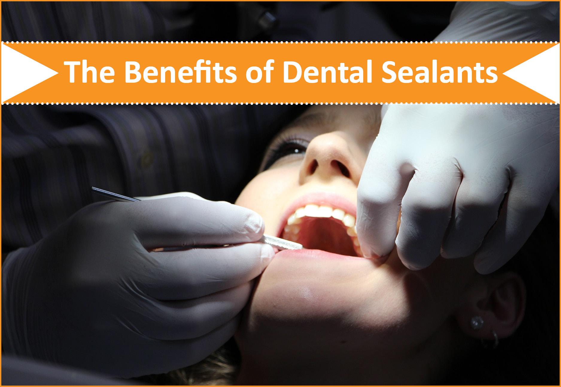 The Benefits of Dental Sealants